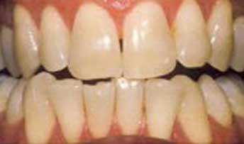 teethwhitening5.jpg