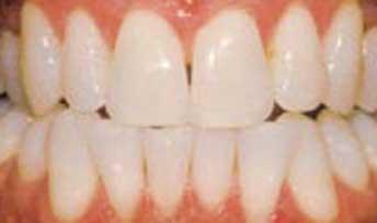 teethwhitening6.jpg