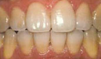 teethwhitening7.jpg