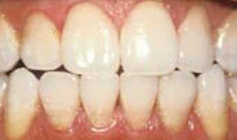 teethwhitening8.jpg