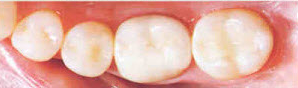 2before_after_fillings2aft.png