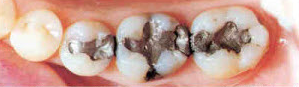 2before_after_fillings2bef.png