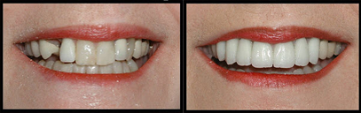 2before_after_veneers.png