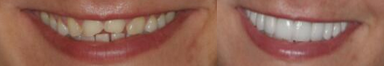 before_after_veneers2.png