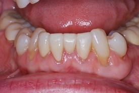 3crowded_lower_teeth_aft1.jpg
