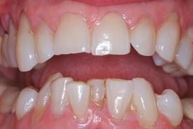 3crowded_lower_teeth_bef1.jpg