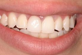 3discolored_teeth_aft1.jpg