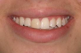 3discolored_teeth_bef1.jpg
