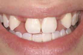 3missing_teeth_bef.jpg