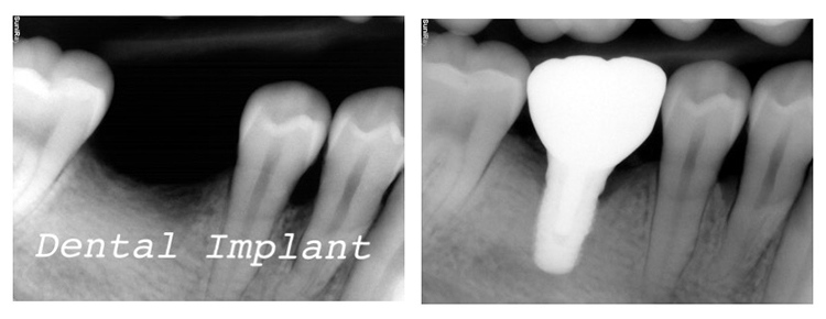 Dental_Implant_xray.JPG