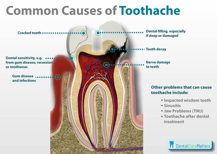 common_causes_of_toothache.jpg