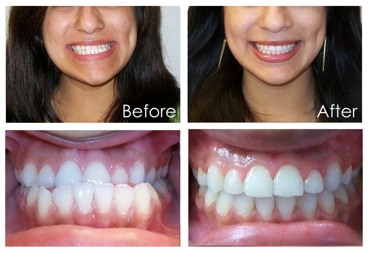 Jade Orthodontics in Kennewick WA