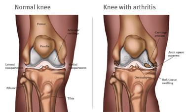 Arklow Chiropractor   Arklow chiropractic Arthritis and Flexicose      