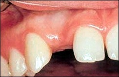 Dental_Implants_1.jpg
