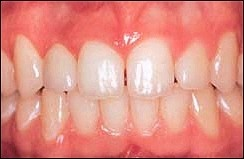 Dental_Implants_2.jpg