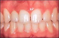 Dental_Implants_2.jpg