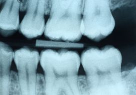 x_ray.jpg