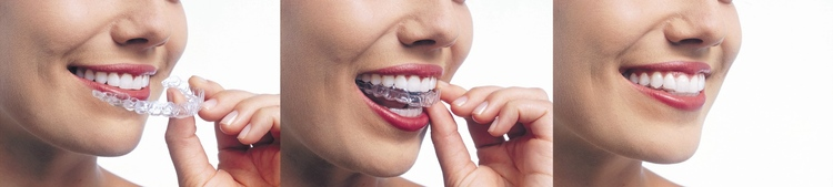 CD Dental Care in Toronto ON