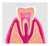 root_canal1.jpg
