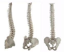 Spine alignment models