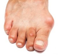 Oak Ridge Podiatrist | Oak Ridge Bunions | TN | Arches Foot Care LLC |