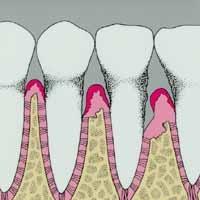 Signs of Gum Diseas