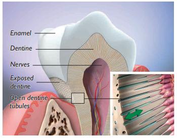 Sensitive tooth