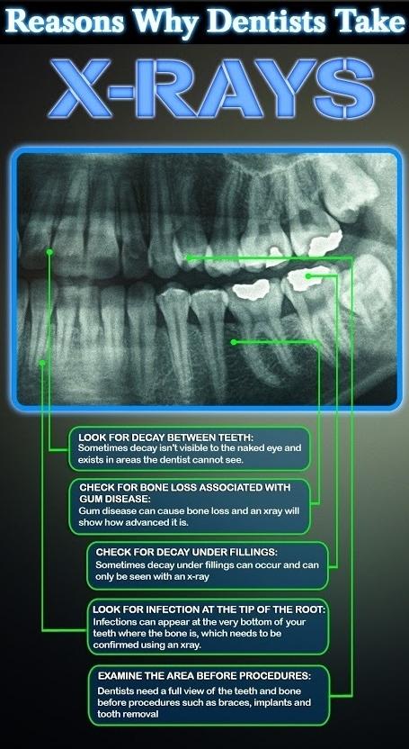 Reasons to take dental x-rays