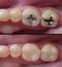Amalgam replaced with composite