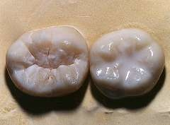 Photo of sealant on tooth