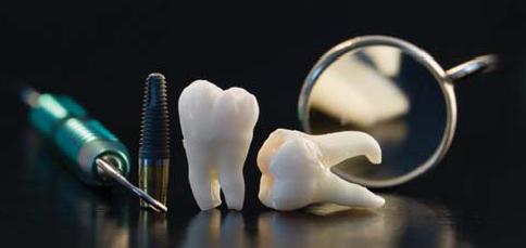 dental_implants.png
