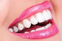 teeth whitening patient in woodstock ga