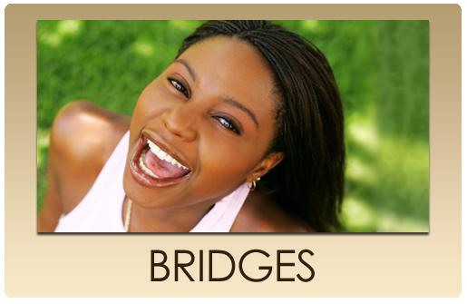 serv_but_BRIDGES.png