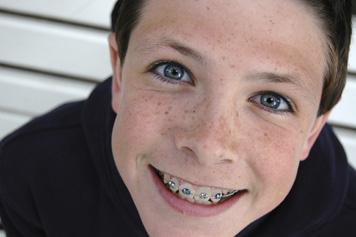 boy_with_braces.jpg