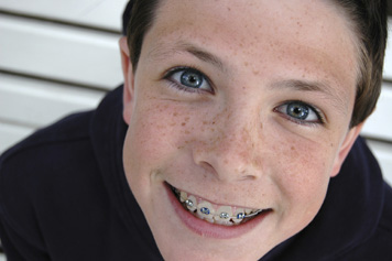 boy_with_braces.jpg