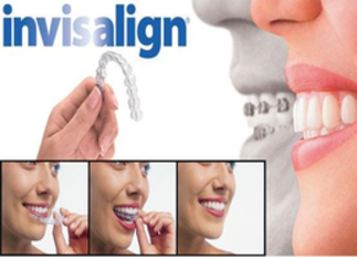 Lynnwood Dentist | Dentist in Lynnwood