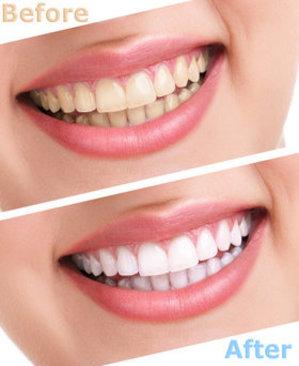 Advanced Dental Solutions in Lynnwood WA