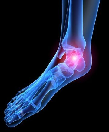 Charleston Podiatrist | Charleston Heel Pain/Fasciitis | SC | Carolina Foot Centers |