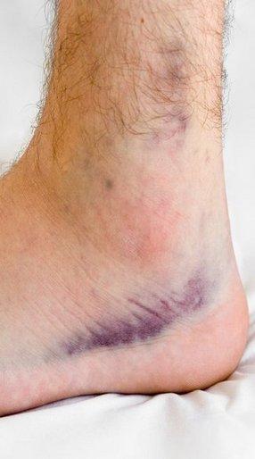 Charleston Podiatrist | Charleston Sprains/Strains | SC | Carolina Foot Centers |