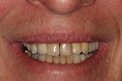 Guess which tooth is on an implant!