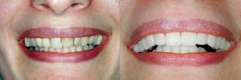 <p>Shadow Mountain Dentistry</p> in Palm Desert CA