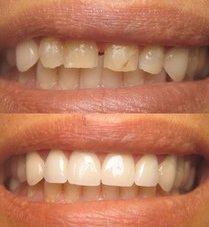 Family Dental Works in La Mirada CA