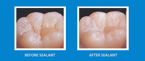 Sealant w/without