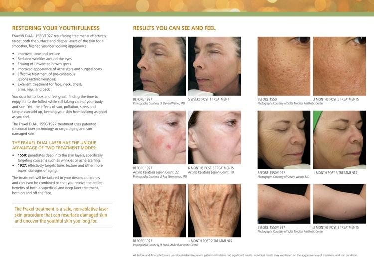Savannah Dermatologist | Savannah Fraxel® | GA | Savannah Skin Pathology |