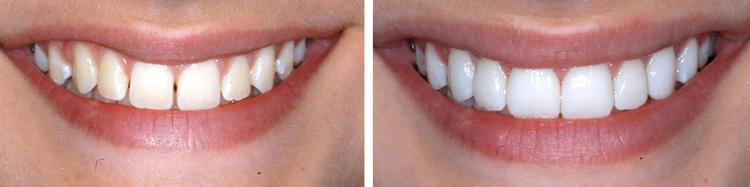 Porcelain_Dental_Veneer.jpg