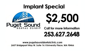 Special_Implant_Special.png