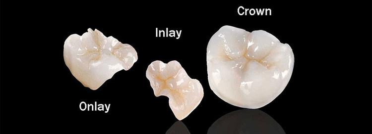 Teeth_Inlays_Onlays_Dentist_Boca_Raton_Florida.jpg