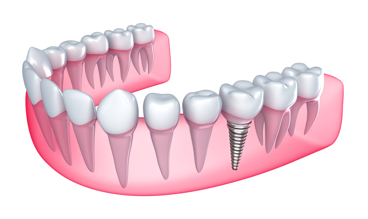 dental_implant_21.jpg