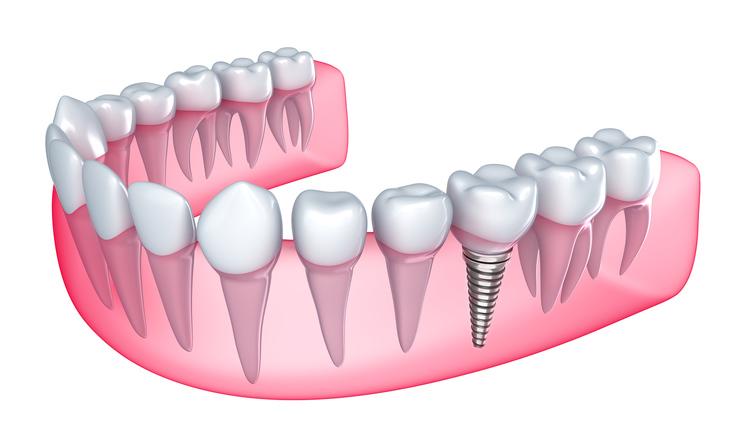 dental_implant_21.jpg
