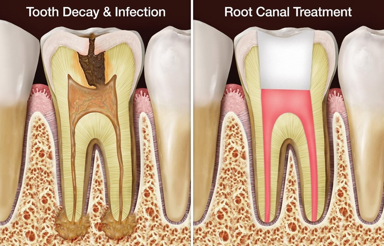 root_canal_treatment.jpg